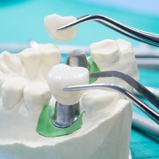 השתלת שיניים מחיר
